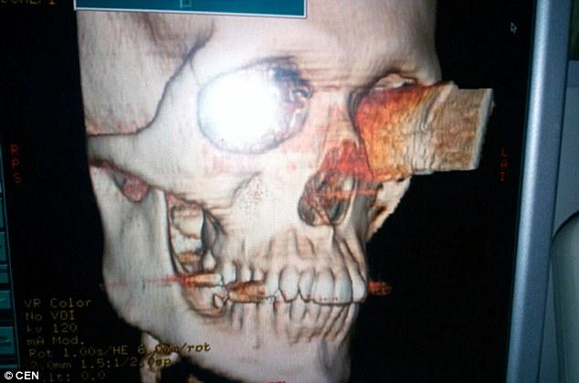 Chàng trai siêu nhân bị dao đâm xuyên qua mắt vào não, vẫn sống và nhìn bình thường.