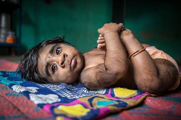 """Thương tâm sự khốn khổ của bà mẹ sinh con trai """"ma sói"""" tỉ lệ gen hiếm 1/1.000.000.000"""